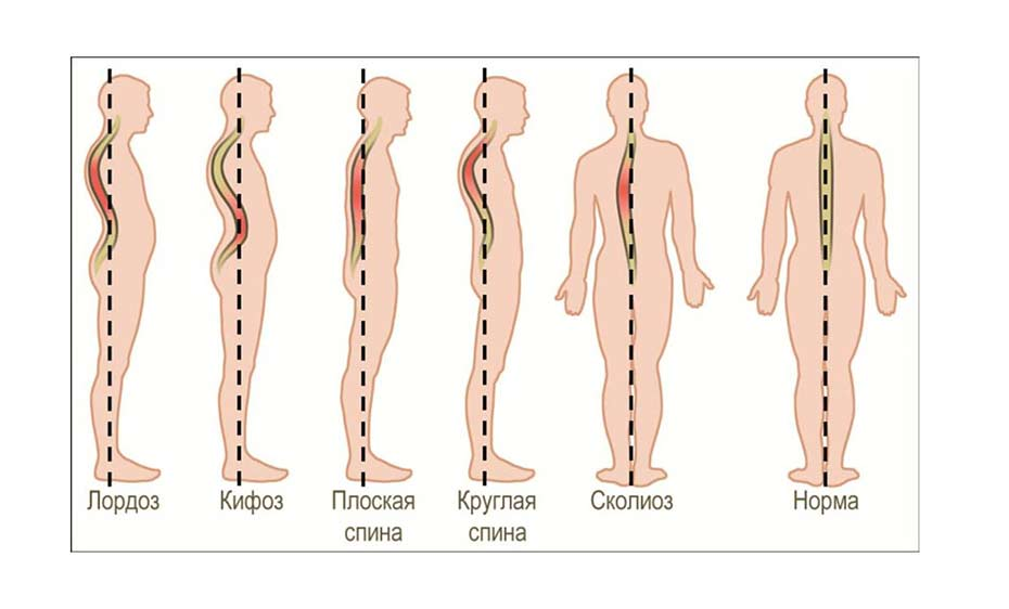 Упражнения при кифозе: комплекс для исправления позвоночника