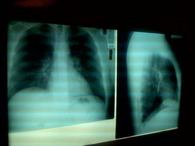 Признаки пневмонии у взрослого без температуры с кашлем