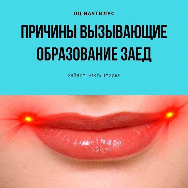 Кандидозные заеды в уголках рта и их лечение