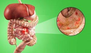 Как снять воспаление в кишечнике при колите