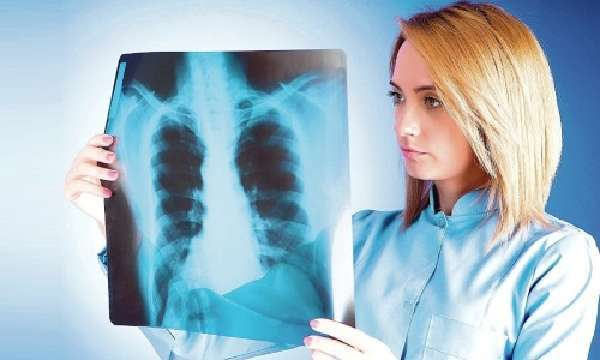 Можно ли заразиться закрытой формой туберкулеза легких и насколько это опасно для окружающих