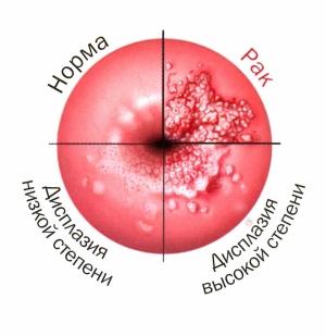 Заболевания шейки матки - симптомы болезни, профилактика и лечение заболеваний шейки матки, причины заболевания и его диагностика на eurolab