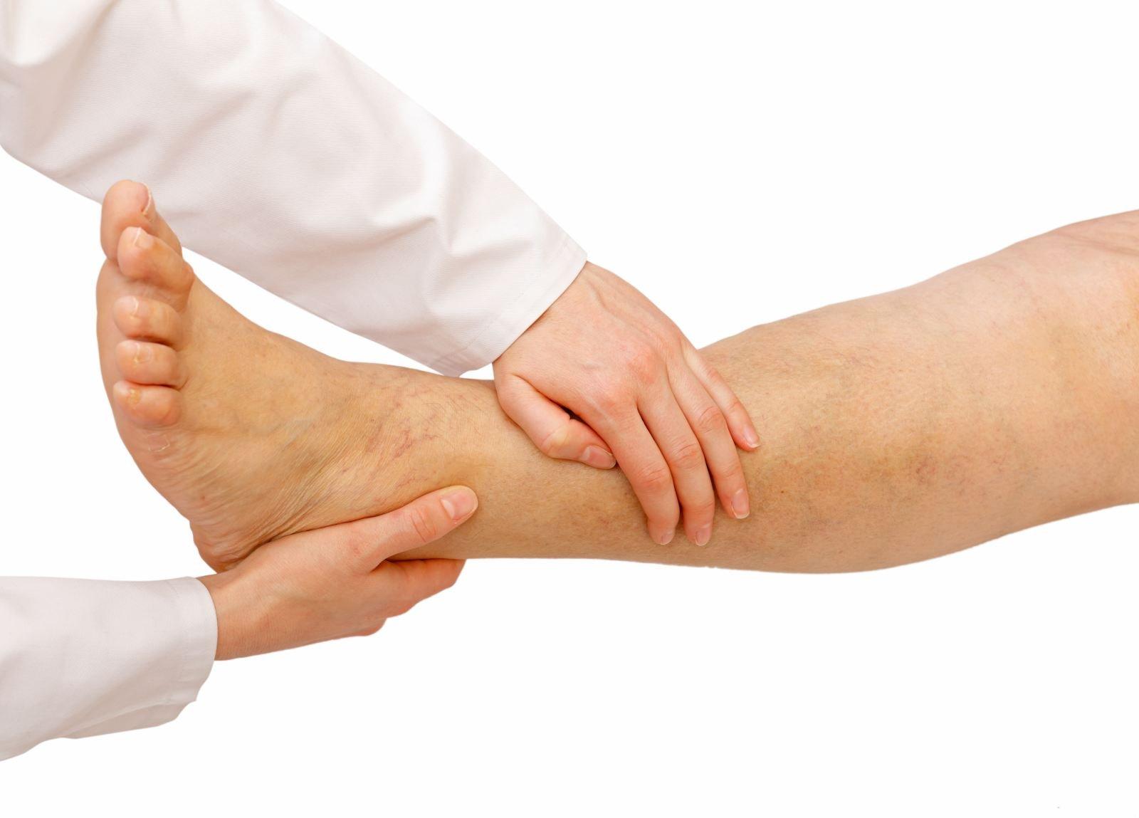 Лимфедема нижних конечностей: причины, симптомы, лечение