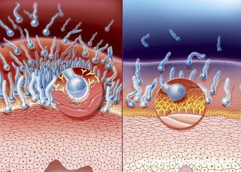 Кандидоз: простой способ проверить наличие грибка в организме