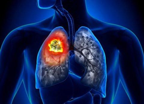 Последствия удаления легкого при раке для больного после операции