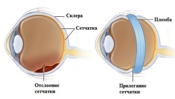 Отслоение сетчатки глаза. лечение, операция, что это такое, симптомы, причины