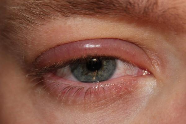 Отек квинке: симптомы и лечение