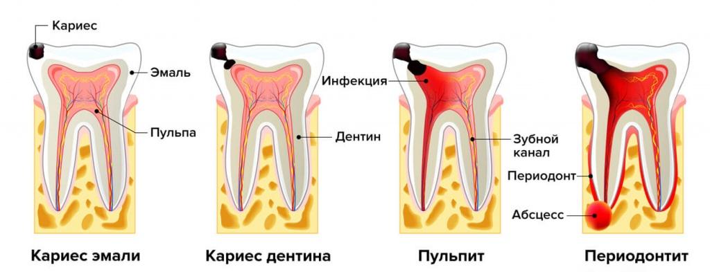 Острый и хронический периодонтит
