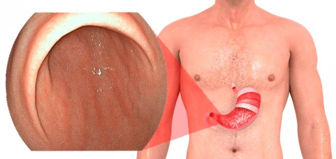 Недостаточность кардии — что это такое? симптомы и лечение заболевания желудка