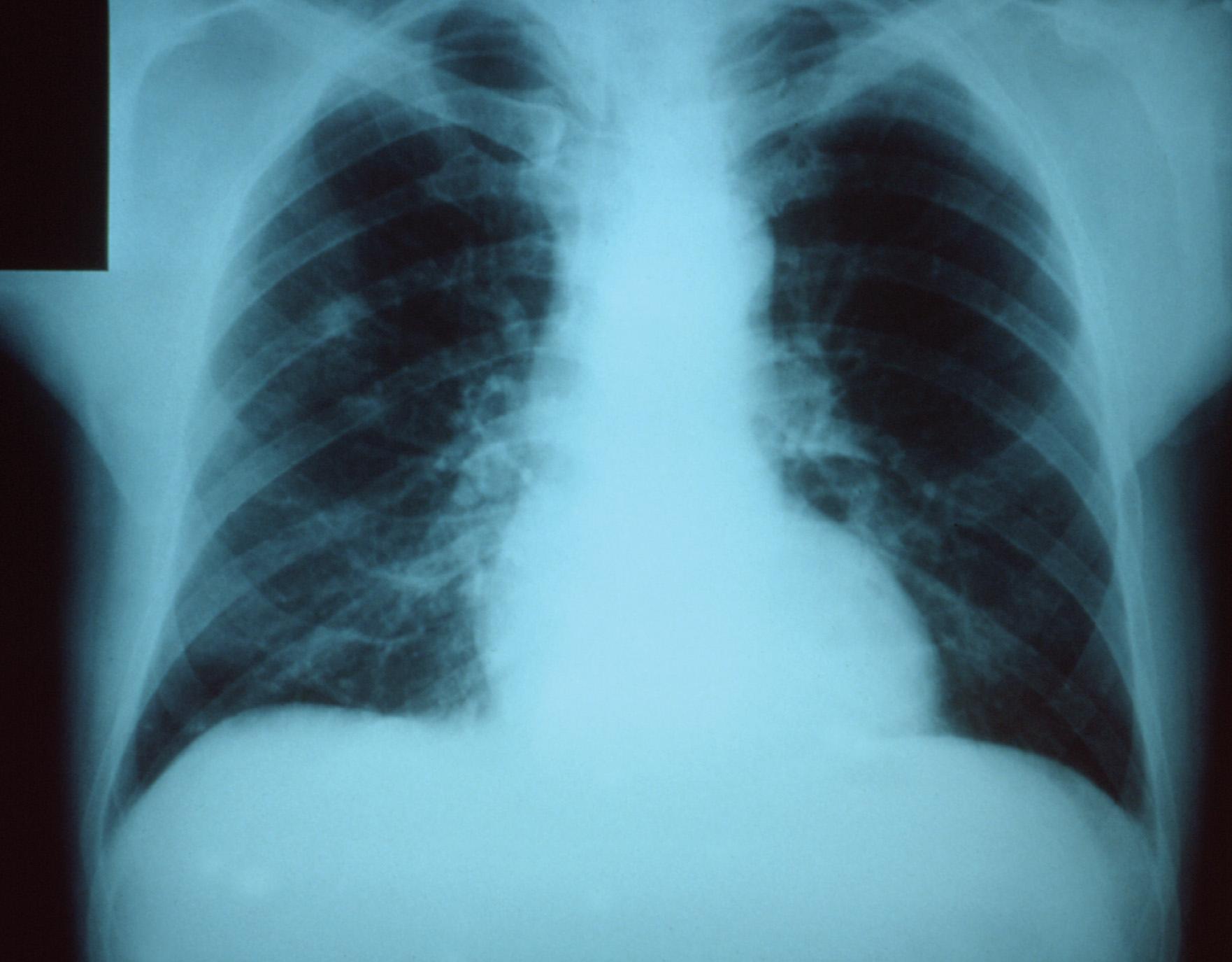 Чем отличается флюорография от рентгена лёгких: в каких случаях применяют