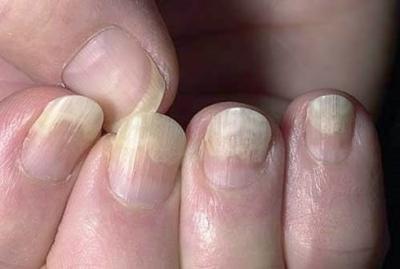 Грибок ногтей — виды, описание лечения, какие бывают и как избавиться раз и навсегда (120 фото)