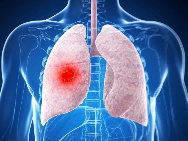 Основные признаки туберкулеза легких у взрослых