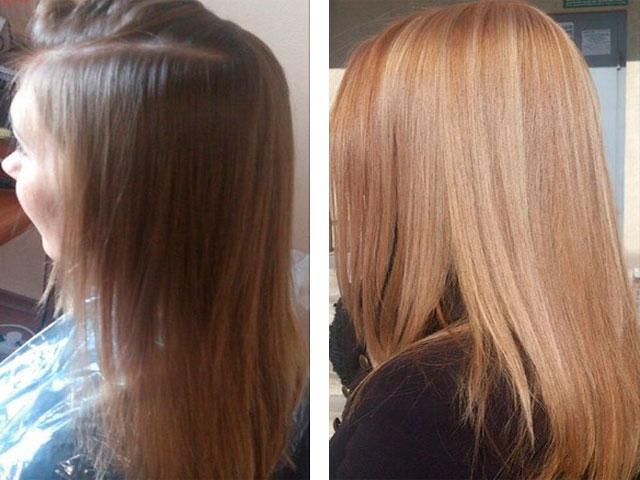 Удаление волос гидроперитом