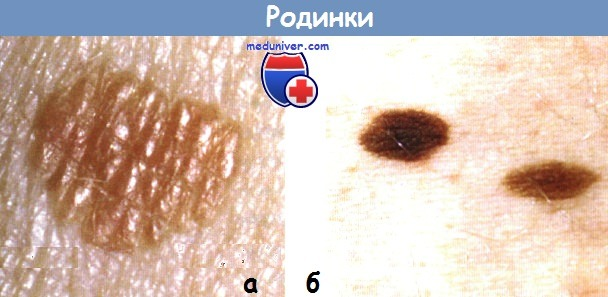 Опасные родинки (фото), виды родинок – папилломатозный, меланоформный, диспластический невус