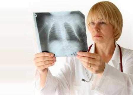 Бронхит курильщика: причины заболевания, основные симптомы, лечение и профилактика