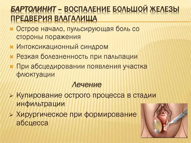 Абсцесс бартолиновой железы - симптомы и лечение