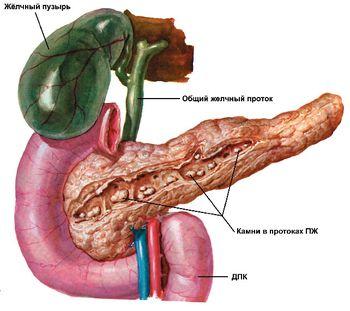 Панкреонекроз и диета