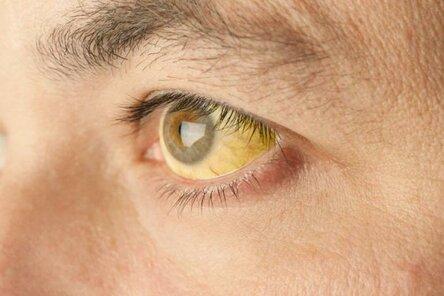 Пожелтела кожа на теле причины. причины пожелтения кожи и разновидности желтухи