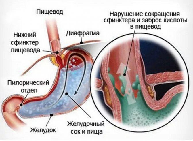 Дуодено-гастральный рефлюкс: что это такое, причины, симптомы, диагностика и лечение (диета, препараты, народные средства)