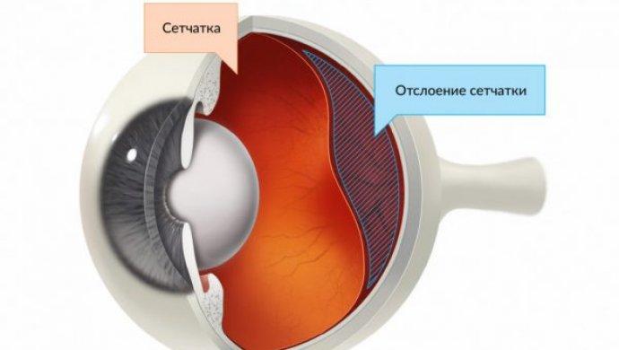 Отслоение (отслойка) сетчатки глаза