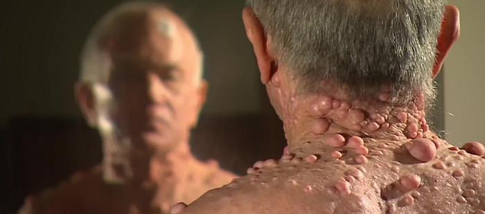 Нейрофиброматоз: симптомы, фото и лечение