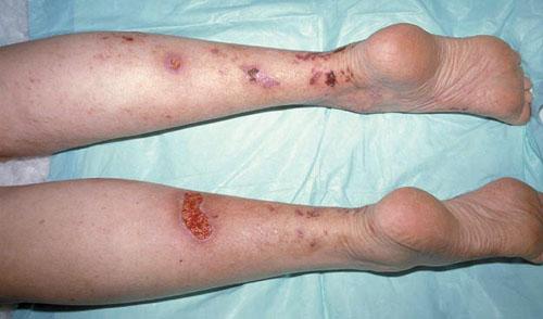 Гематома, клинические признаки, прогноз и лечение - закрытые повреждения мягких тканей