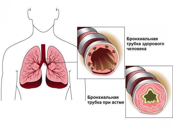 Что делать при приступе астмы: меры первой помощи