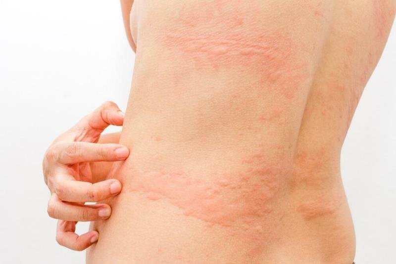 Крапивница - симптомы болезни, профилактика и лечение крапивницы, причины заболевания и его диагностика на eurolab