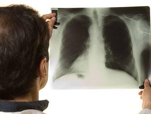 Как обнаружить туберкулез на рентгене? может ли снимок не показать болезнь?