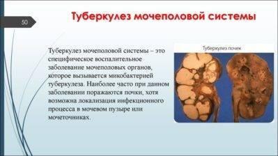 Туберкулез органов мочевыводящей системы