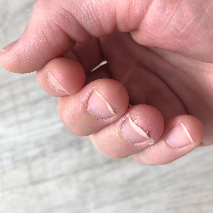 Почему истончаются ногти и что делать в таких случаях