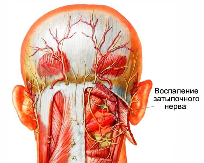 Боль в шее и в затылке: причины и лечение