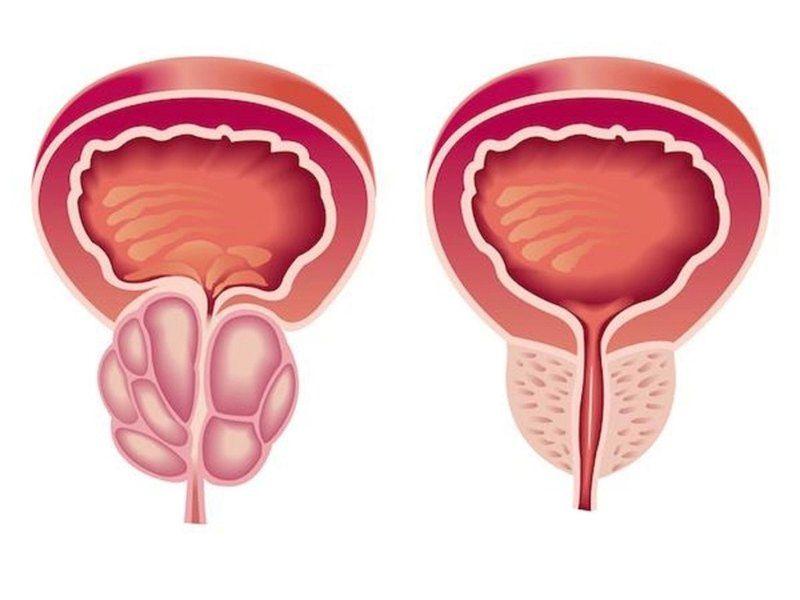 Хронические простатит у мужчин: симптомы и лечение