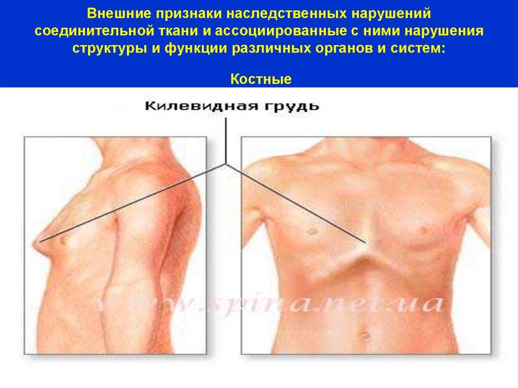 Синдром дисплазии соединительной ткани