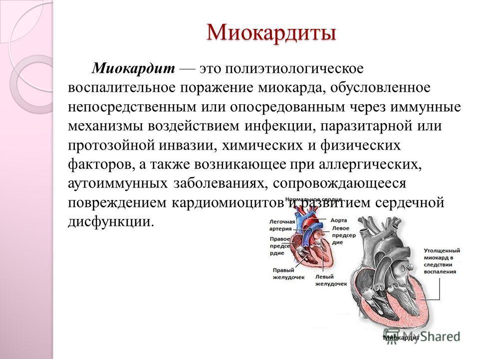 Характеристика острого миокардита: особенности болезни, ее лечение и прогнозы