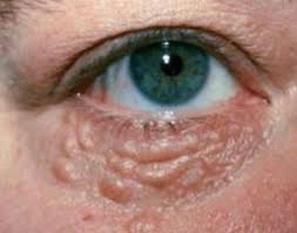 Что такое милиумы на лице?
