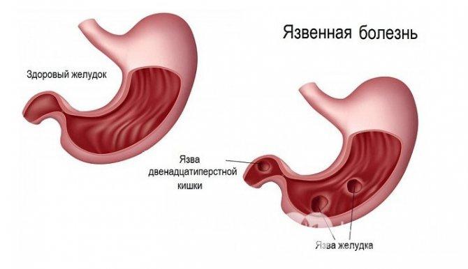 Язва желудка: симптомы и проявления у взрослых, лечение