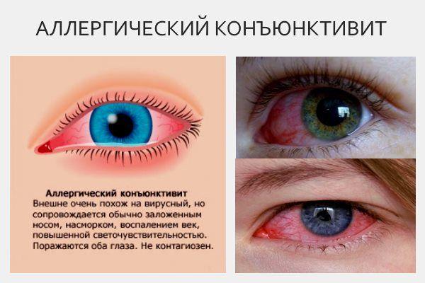 Чем опасен аллергический конъюнктивит