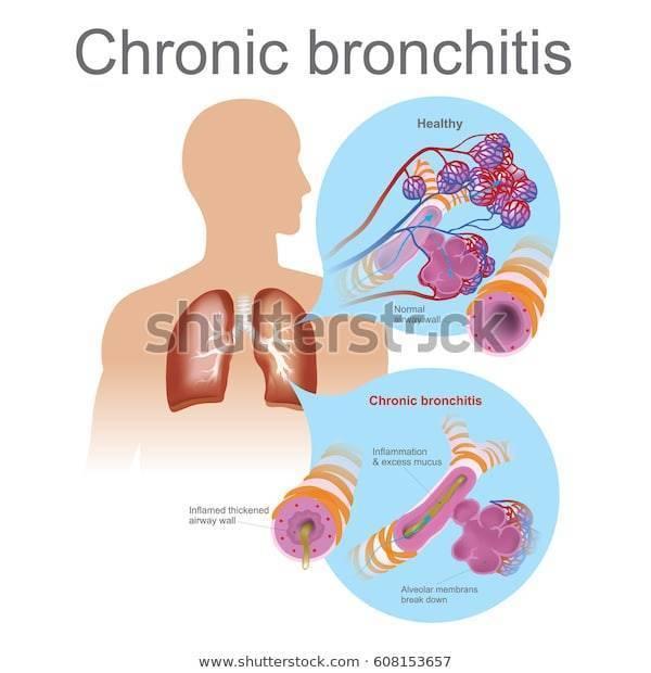 Чем лечить хронический бронхит курильщика — эффективное лекарство при первых симптомах