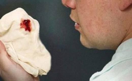 Кашель с кровью: что это может быть и что делать, причины, видео