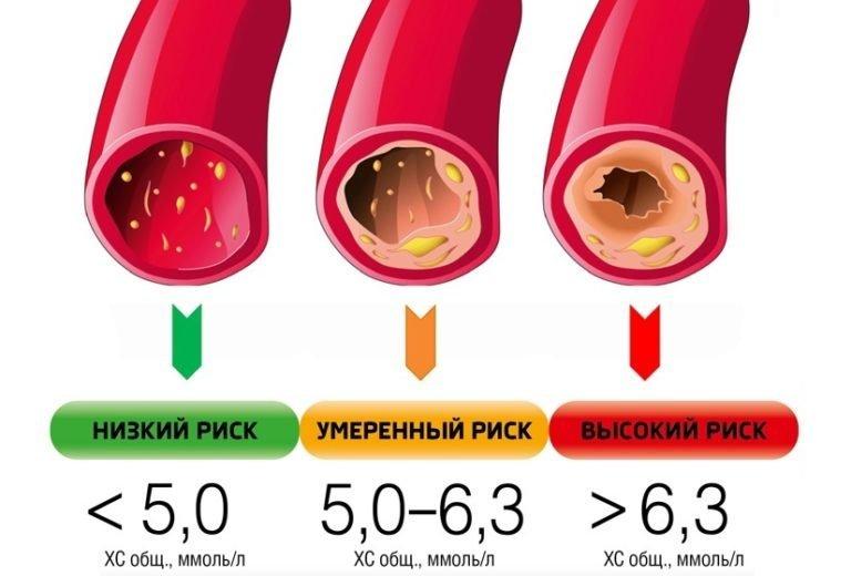 Коэффициент (индекс) атерогенности