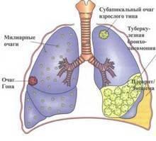 Инфильтративный туберкулез легких – заразен или нет, лечение