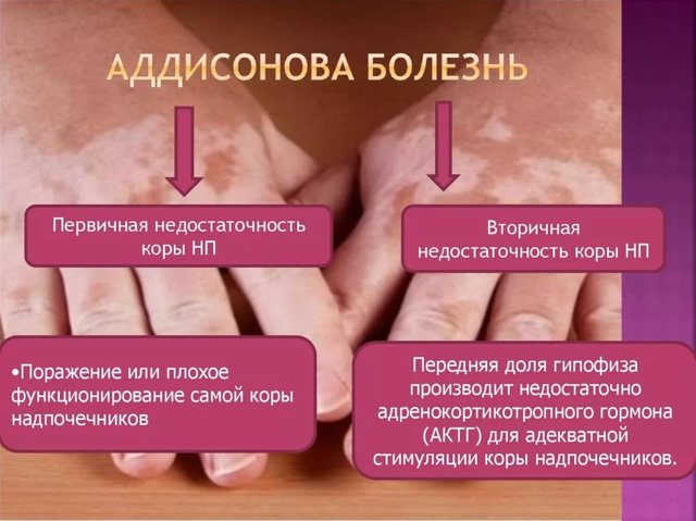 Болезнь аддисона бирмера у женщин и мужчин – симптомы, диагностика, причины и лечение заболевания - docdoc.ru
