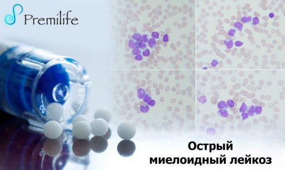 Прогнозы выживаемости при остром лейкозе у взрослых и детей