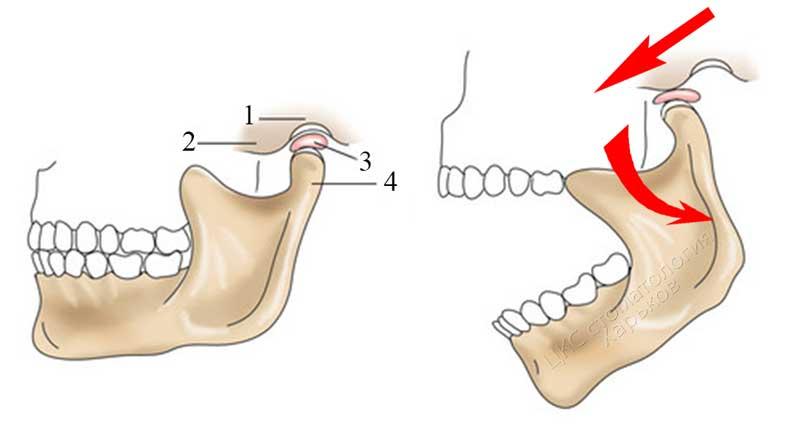 Лечение височно-нижнечелюстного сустава: подробное описание методов