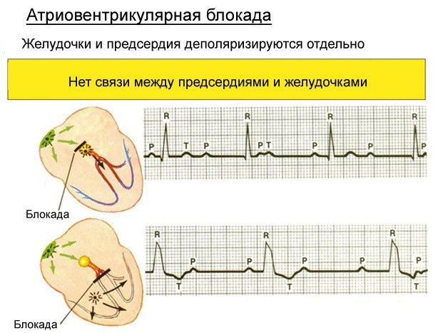 Атриовентрикулярная блокада сердца: классификация по степеням, причины и симптомы