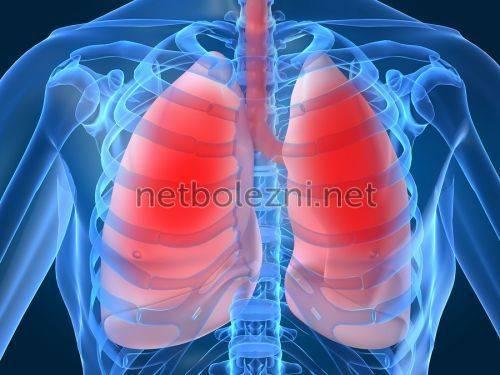 Признаки пневмонии у взрослого без температуры с кашлем сухим