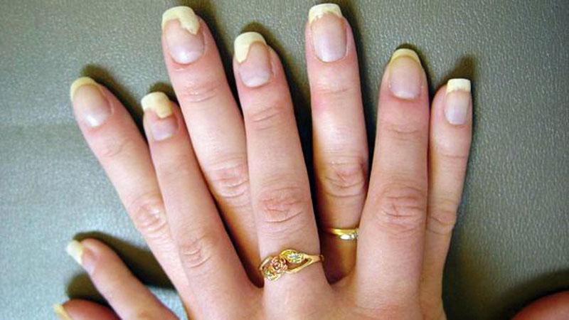Болезни ногтей. изменение цвета. фото