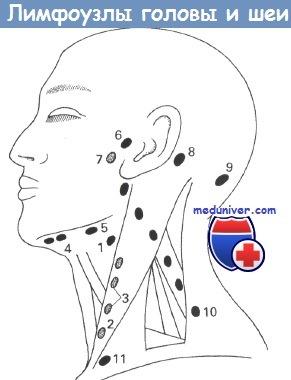 Лимфаденит: что это такое, код мкб 10, симптомы у взрослых и лечение