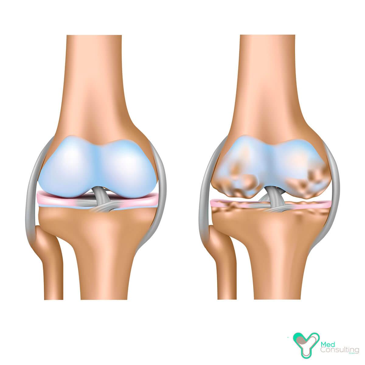 Коксартроз тазобедренного сустава — что это, причины и лечение | все о суставах и связках